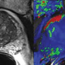 rmn parametrica della prostata