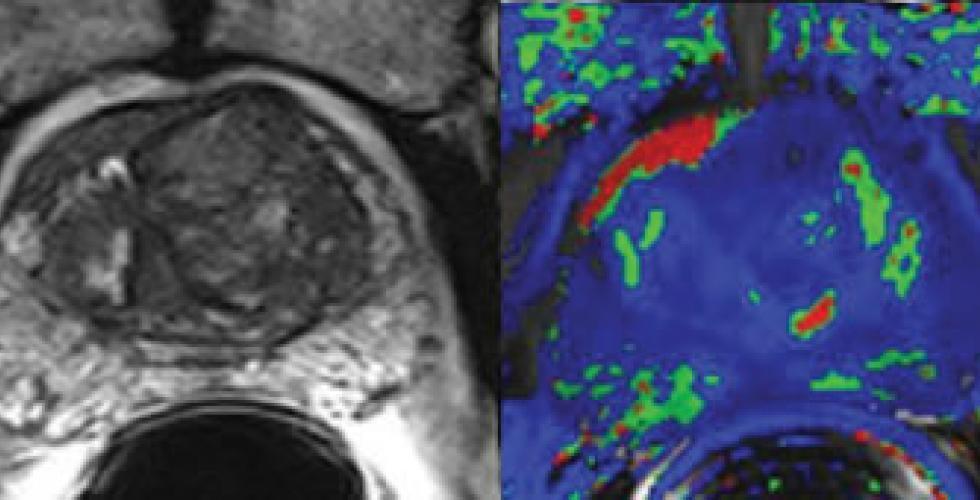 risonanza multiparametrica prostata dover